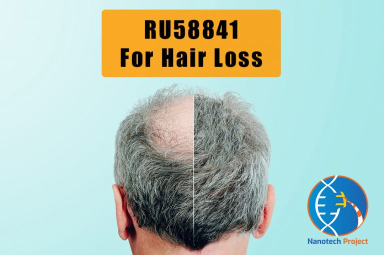 RU58841 for hair loss