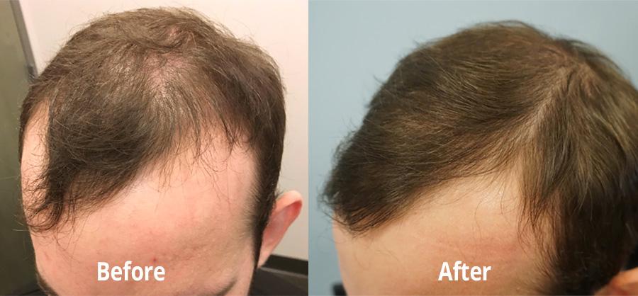 Hair loss nofap NoFap and